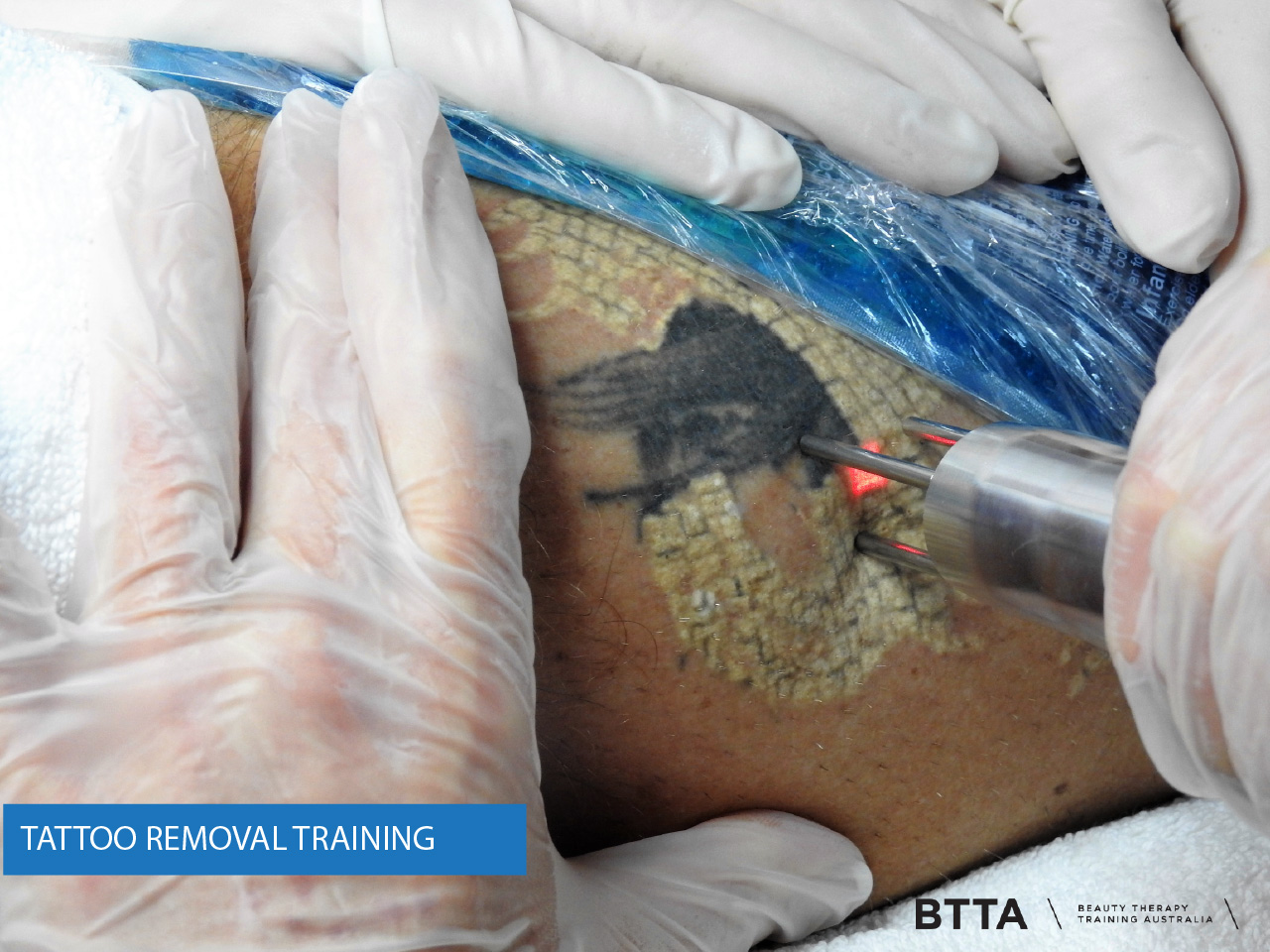 Tattoo Removal Images Laser Training International